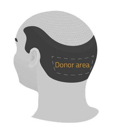 donor-area